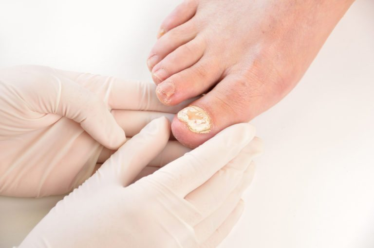 Get rid of nail fungus and be proud of your feet again » Franklin ...